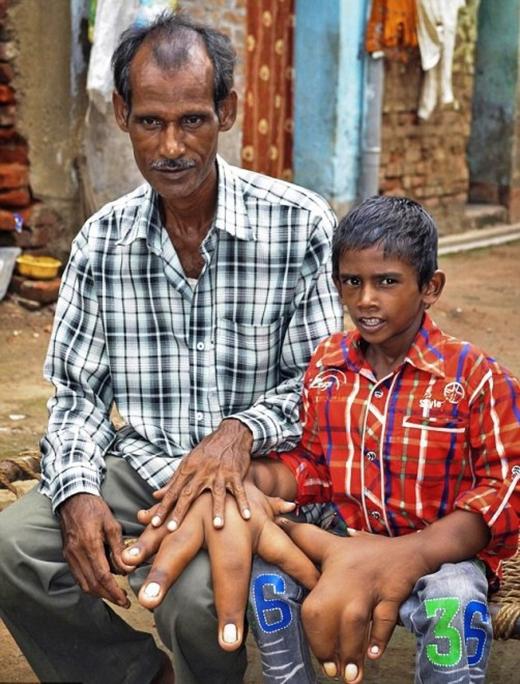 Kaleem hiện sống cùng gia đình trong một ngôi làng hẻo lánh miền Đông Ấn Độ. Cả cha mẹ cũng bất ngờ về đôi tay kì quái của cậu bé nhưng không có đủ tiền để đưa con đi khám bệnh.
