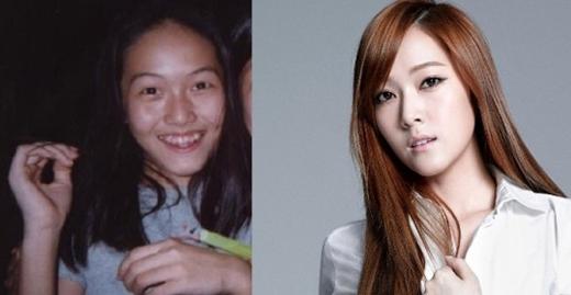 Nhan sắc của cựu thành viên SNSD - Jessica Jung đã được cải thiện rất nhiều trong những năm qua. Bên cạnh sự thay đổi trong thời trang, kiểu tóc và cách trang điểm, Jessica cũng nhờ đến phẫu thuật thẩm mĩ để hoàn thiện vẻ đẹp của mình. Có thể nói, côđã trở thành một trong những xu hướng của công nghệ làm đẹp Hàn Quốc. Ngoài ra, Jessica cũng có một gu thời trang ấn tượng, đó cũng là lí do mà hiện nay Jessica đang tập trung hết sức mình cho thương hiệu thời trang do chính cô thành lập.