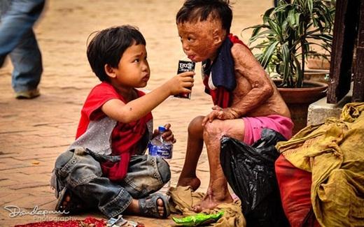 Bức hình cậu bé đút sữa cho một em nhỏ bị bỏng gần như biến dạng toàn bộ khuôn mặt cùng cơ thể khiến nhiều người rớt nước mắt xúc động.