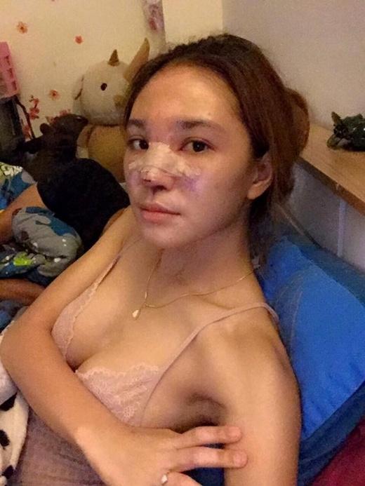 Gương mặt của cô sau khi được rút silicon.
