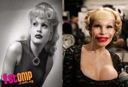 Trước và sau khi cô người mẫu chuyển giới xinh đẹp phẫu thuật thẩm mĩ.