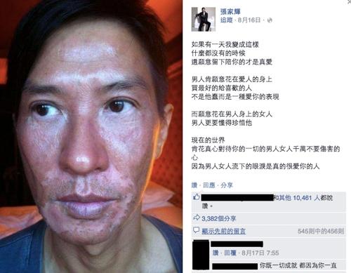 Khuôn mặt của Trương Gia Huy sau khi làm việc 6 tiếng đồng hồ dưới ánh nắng gay gắt