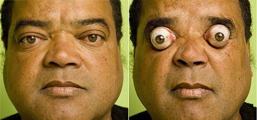 """Người đàn ông có tên Claudio Paulo Pinto này chắc chắn sẽ làm trẻ em chết khiếp bởi đôi mắt có thể lồi ra tới 7mm. Nhờ vậy, Pinto đã nổi tiếng thế giới và được ghi vào sách kỉ lục Guinness. Hiện chưa ai có thể """"soán ngôi"""" mắt lồi này của anh."""