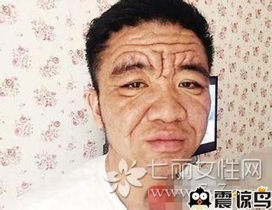 Anh Bình mới 30 tuổi nhưng trông giống như ông lão ở tuổi 70.