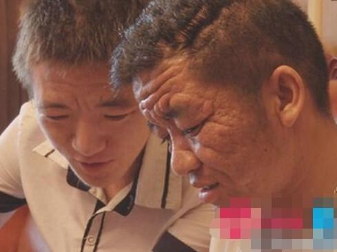Anh Bình và cậu em trai gần 20 tuổi cùng mắc phải căn bệnh lạ này