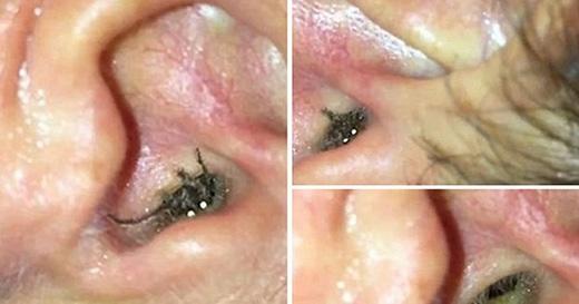 Cô Katie Melua cảm thấy đau ở lỗ tai và những âm thanh lạ bên trong tai suốt một tuần. Kết quả các bác sĩ đã gặp ra một con nhện trong ống tai của Katie và được cô thả lại trong vườn nhà.