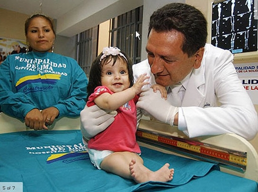 Bé gái ở Peru chào đời với hai chi dính liền vào nhau. Ảnh: qqc.cuny.edu