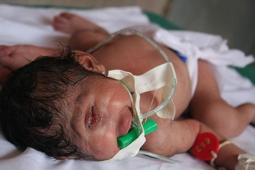 Đứa trẻ mắc chứng Cyclopia chỉ có một mắt ở giữa. Ảnh: Lightstalkers.org