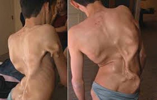 Bệnh loạn sản xơ xương khiến xương dễ phát triển trên những vùng dễ tổn thương trên cơ thể bệnh nhân. Ảnh: Primehealthchanel