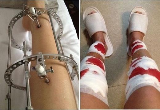 Sau nhiều tháng, đôi chân của khổ chủ sẽ dài ra. Tuy nhiên, mức độ đau đớn cũng như những biến chứng sau phẫu thuật sẽ đeo đuổi khổ chủ suốt cả cuộc đời.
