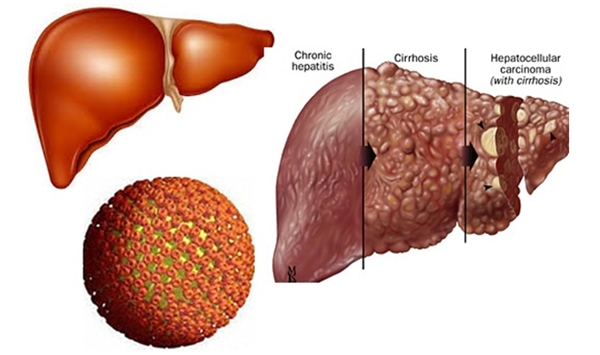 Cảnh báo: những loại bệnh càng để lâu dễ thành ung thư