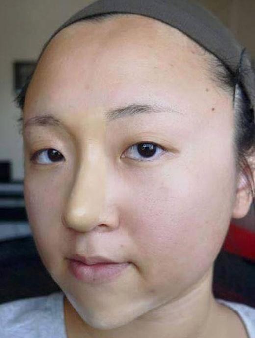 Dân mạng xôn xao với cô gái Việt độn cằm, nâng mũi bằng bột