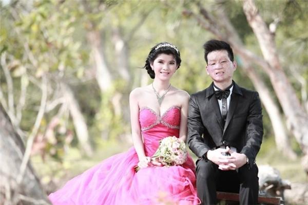 Hình ảnh đám cưới của cặp đôi chồng xấu xí-vợ xinh đẹp, (Nguồn: Internet)