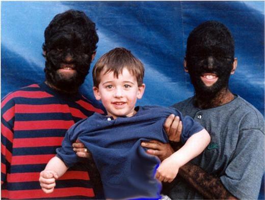 """Victor """"Larry"""" và Gabriel """"Danny"""" Ramos Gomez là anh em ruột. Cả hai đều mắc phải căn bệnh khiến lông bao phủ gần như toàn bộ cơ thể. Khả năngnhào lộn là biệt tài, cộng với vẻ ngoàikìlạ, đã giúp bộ đôi nàynổi tiếng trên truyền hình. (Ảnh: Oddee)"""