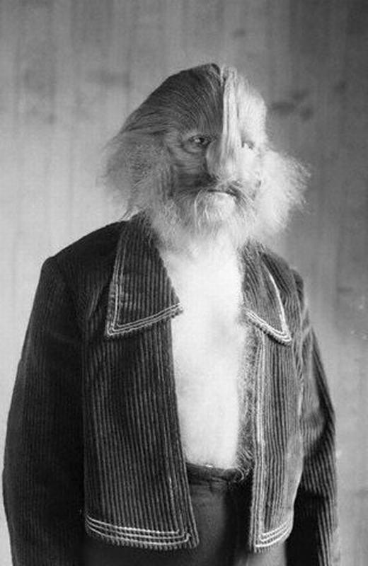 Stephan Bibrowski (1891-1932) là một người khá nổi tiếng với nghệ danh Lion-Faced Man (người đàn ông với khuôn mặt sư tử). Như cái tên, người đàn ông Ba Lan này thường giả sư tử trên sân khấu. (Ảnh: Oddee)