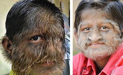 Cậu bé này có tên là Pruthviraj Patil, sinh ra trong mộ gia đình làm nông ở gần Mumbai, Ấn Độ. Vì ngoại hình đầy lông, cha mẹ Pruthviraj đã bán hết tài sản để đưa con đichạy chữa khắp nơinhưng đến thời điểm hiện tại, bệnh tình vẫn chưa thuyên giảm.(Ảnh: Oddee)