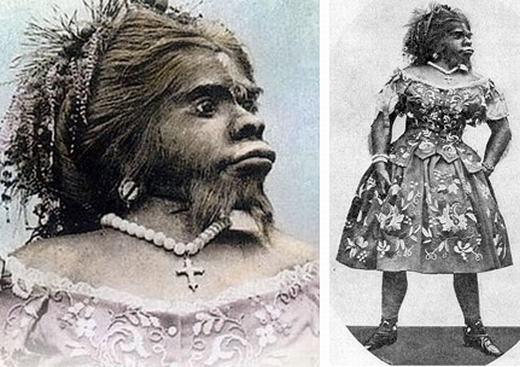 """Julia Pastrana(1834 - 1860) là một phụ nữ Mexico sinh ra với chứng bệnh nhiều lông. Bên cạnh việc lông lá phủ kín cơ thể, Julia còn có hàm răng lớn bất thường. Nhà bác học Charles Darwinđã mô tả bà là """"người cóbộ râu dày, trán nhiều lông, hàm trên và dưới bất thường trông giống như khỉ đột"""". (Ảnh: Oddee)"""