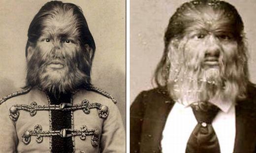 """Fedor Jeftichew ở St. Petersburg, Nga bị mắc hội chứng """"người sói"""" kể từ khi sinh ra (1868). Nhờ bộ dạng này, ông kiếm được rất nhiều tiền sau khi gia nhập một gánh xiếc. Ông thông thạo 2 ngoại ngữ là Đức và Anh bên cạnh tiếng mẹ đẻ - tiếng Nga. (Ảnh: Oddee)"""