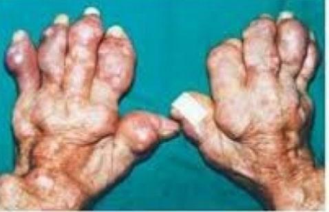 Hình ảnh bị gout của một bệnh nhân béo phì.