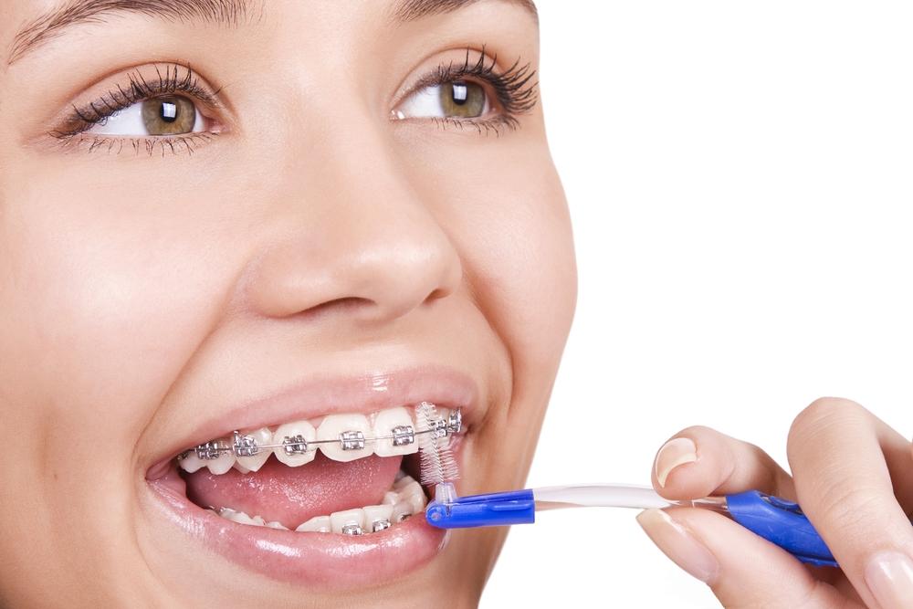 Phân vân không biết có nên niềng răng để có hàm răng đẹp?