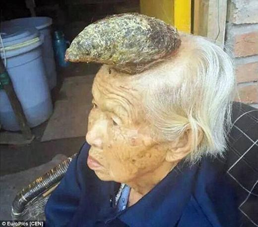 """Được mệnh danh là """"cụ bà kì lân"""", cụ Liang Xiuzhen, 87 tuổi, sống tại Trung Quốc đã khiến nhiều người kinh ngạc về chiếc sừng rất lớn trên đầu của mình. Theo lời kể của cụ Liang, chiếc sừng này hình thành và phát triển sau khi có mộtnốt ruồi mọc và gây ngứa. Cách đây hơn 2 năm, nó chỉ là khối sừng nhỏ nhưng hiện tại, kích thước """"vật thể lạ"""" này khá lớn và cách duy nhất để loại bỏ nó là phẫu thuật. (Ảnh: Oddee)"""