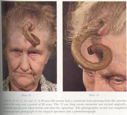 Một trường hợp mọc sừng khác là cụ bà 69 tuổi này. Không có nhiều thông tin nhưng những hình ảnh ghi lại cho thấy, cụ có chiếc sừng dài tới 17cm, phát triển ở giữa trán từ 20 năm trước. Hiện nó đã được phẫu thuật cắt bỏ. (Ảnh: Oddee)