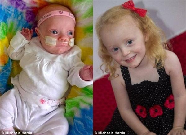 Bé Grace bây giờ đã là một cô bé 4 tuổi đáng yêu và lanh lợi.(Ảnh: Daily Mail)