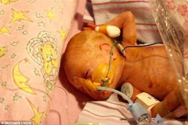 Grace đã phải thở bằng máy ô-xitrong 18 tháng đầu đời nhưng rồi cũng vượt qua kì kiểm tra thính lực, thị lực và một số chức năng khác.(Ảnh: Daily Mail)