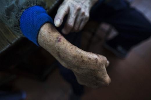 Trong 71 năm làm nghề, ông cụ này đã bị rắn cắn nhiều lần,tuy nhiên rất may chưa lần nào gặp phải rắn độc.Ảnh: Internet