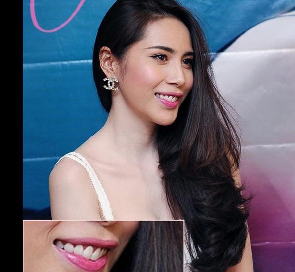 Nhiều người sẽ đồng tình với ý kiến rằng Thủy Tiên chỉ nên cười mỉm nhẹ nhàng chứ không nên cười lớn để lộ khuôn miệng kém sang và hàm răng hơi hướng vào phía trong - Tin sao Viet - Tin tuc sao Viet - Scandal sao Viet - Tin tuc cua Sao - Tin cua Sao