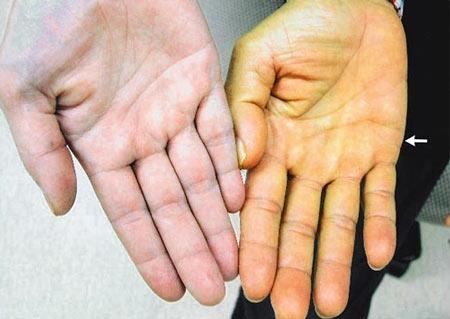 Bệnh vàng da khiến nhiều người rất lo lắng, nhất là các cô gái. Ảnh: Internet