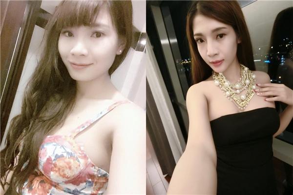 Hình ảnh khác biệt của Kim trước và sau phẫu thuật thẩm mĩ toàn thân. (Ảnh Internet)