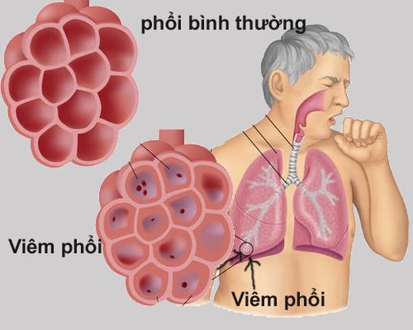 Bệnh viêm phổi cấp dẫn đến nguy cơ tử vong rất cao. (Ảnh: Internet)
