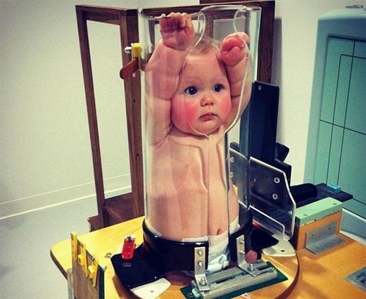 Hình ảnh em bé bị kẹp trong một chiếc lọ trong suốt gây xúc động rộng khắp thế giới. Chiếc lọ này có chức năng cố định cơ thể đứa bé để thực hiện soi X quang, tránh việc người thân hay bác sĩ bị ảnh hưởng bởi tia phóng xạ khi kiềm giữ đứa bé. (Ảnh: Medical Daily)