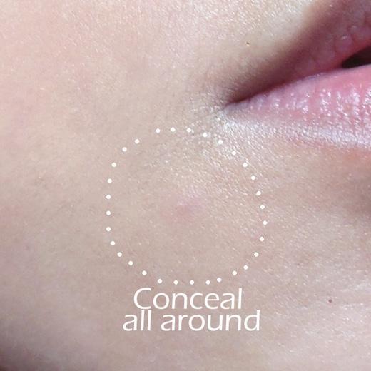 Ngoài việc thoa mĩphẩm che khuyết điểmlên mụn, cần thoa lên vùng da quanh nó nữa để màu sắc hòa hợp với tổng thể khuôn mặt. (Ảnh: Internet)