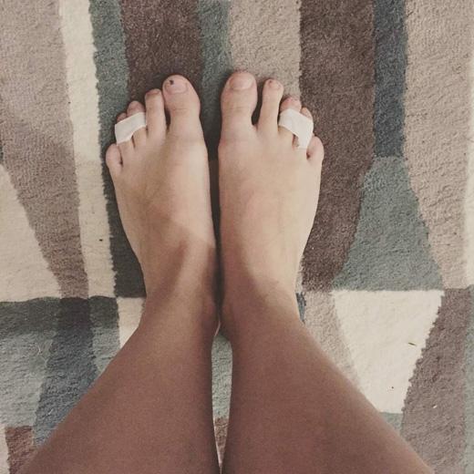 Dùng băng dính dán ngón chân thứ 3 và 4 lại để giảm đau cho phần xương nơi tiếp giáp giữa bàn chân và các ngón chân. Nguyên nhân là bởi có một dây thần kinh chia cắt hai ngón chân này, và nó sẽ gây đau nếu chịu áp lực lớn khi mang giày cao gót. Tốt nhất là dùng băng dính trong suốt để không bị lộ khi mang giày. (Ảnh: Internet)