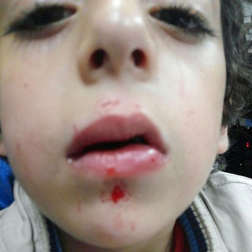 Vết thương kinh hoàng trên mặt của Amir. (Ảnh: The Sun)