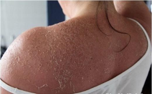Một biểu hiện của ung thư da