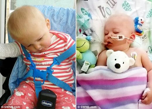 Trước đó, cô bé được chẩn đoán mắc căn bệnh ác tínhMitochondrial. (Ảnh: Daily Mail)