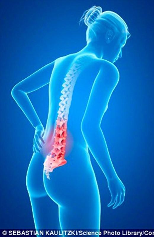 Cơn đau lưng thường xuất hiện ở những người thường xuyên gập bụng. (Ảnh: Sebastian Kaulitzki/Science Photo Library/Corbis)