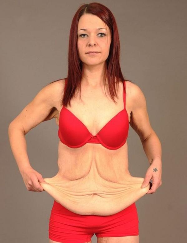Những hậu quả khôn lường của việc giảm cân quá nhanh