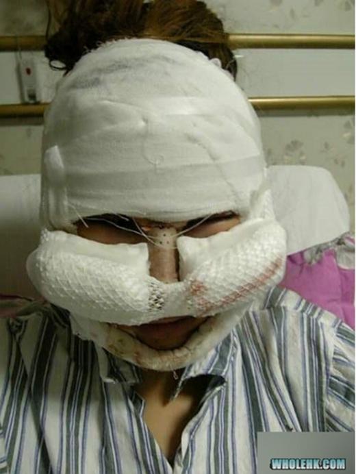 Toàn cảnh khuôn mặt cô sau khi được phẫu thuật gò má, cắt mí mắt. Lúc này đây cô chỉ vừa mở mắt được sau ca phẫu thuật. (Ảnh: Internet)