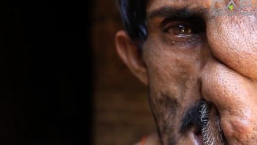 Rơi nước mắt với câu chuyện người đàn ông