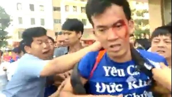 Nam thanh niên bị đánh chảy máu đầu. Ảnh cắt từ clip.