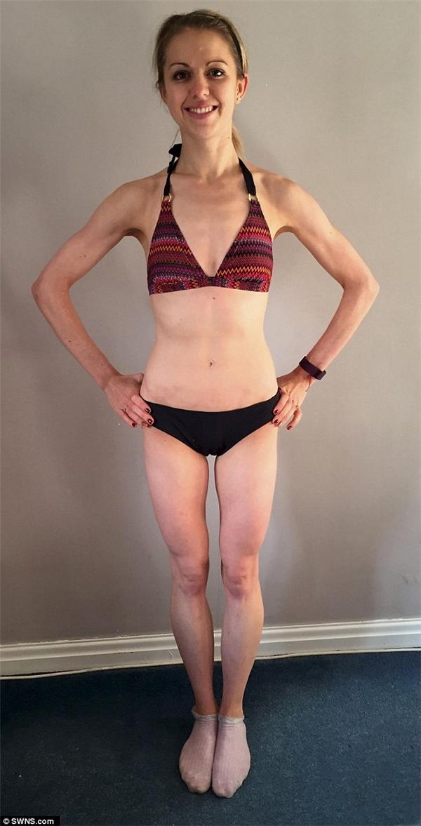 Emma tăng cân sau nỗ lực điều trị. (Ảnh: Internet)