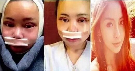 Cô gái phẫu thuật để trở nên xinh đẹp như AngelaBaby (Nguồn Internet)