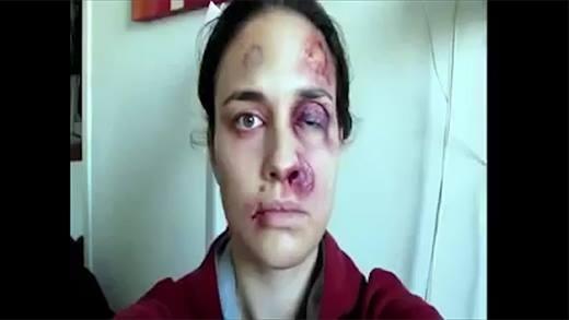 Xót xa với thông điệp bạo hành thông qua loạt ảnh tự sướng của cô gái