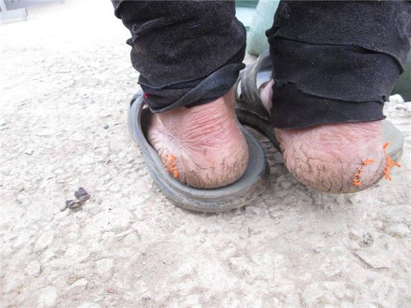 Đôi chân không có tất, mang đôi dép lê cũ mòn và những vết nứt chằng chịt. (Ảnh: Internet)