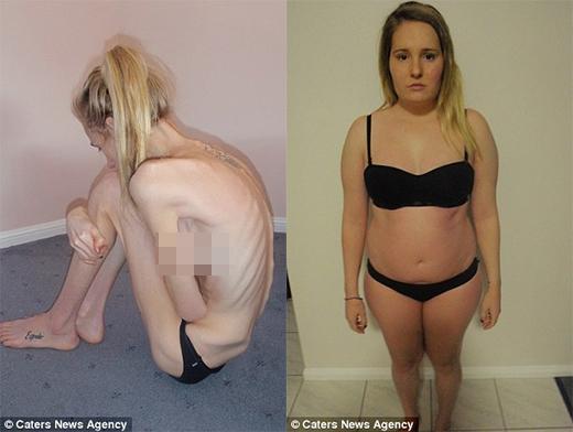 Từ một cô gái gầy trơ xương vì biếng ăn, Gemma tăng cân vùn vụt. (Ảnh: Internet)