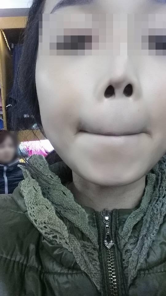 """L. là """"nạn nhân"""" của phẫu thuật thẩm mĩ, khi chiếc mũi của cô gái này đã biến dạng. Ảnh: Internet"""